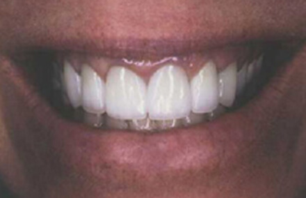 Woman's front teeth with flawless Empress crowns