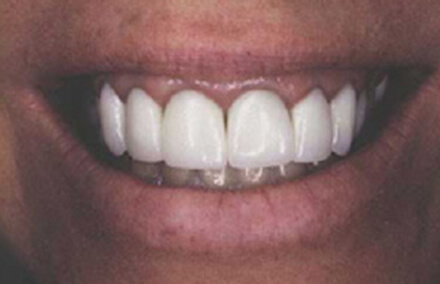 Woman's unnatural looking dental crowns