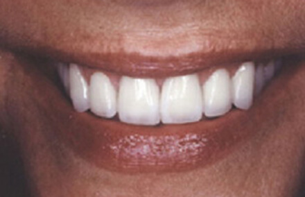 Woman's smile repaired with Empress restorations