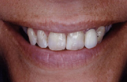 Woman's smile with badly worn front teeth