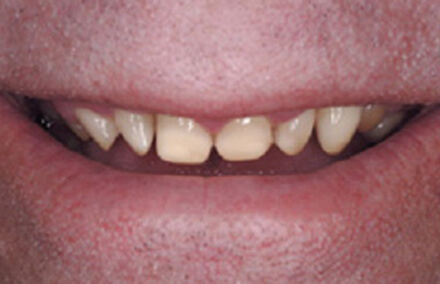 Small poorly formed yellow teeth