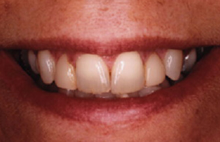 Discolored teeth thin near biting surface