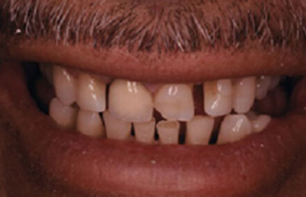 Damaged front tooth and unevenly spaced teeth