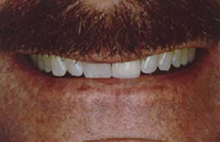 Man with worn discolored teeth