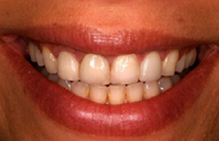 Uneven worn down yellowed teeth
