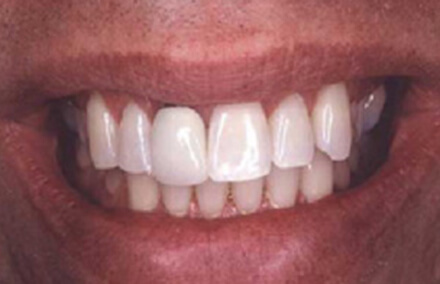 Man's smile with discolored left crown