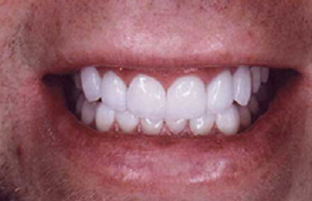 Man's smile fully repaired with natural looking crowns
