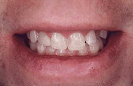 Man with broken right front tooth