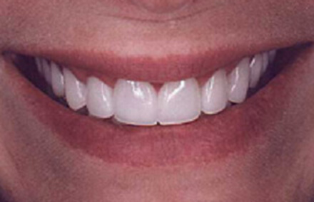 Flawless Empress crown repaired smile