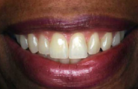 Picture-perfect smile repaired with Empress crowns