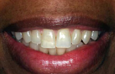Smile with broken tooth and discoloration