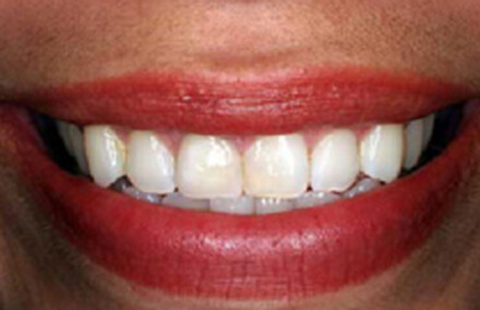 Natural looking zirconia crown tooth restoration