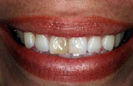 Woman's smile with discolored left tooth filling