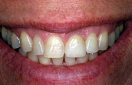 Flawlessly natural looking smile following dental implant