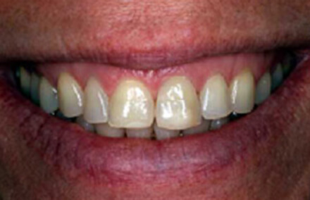 Smile with damaged left tooth