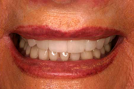 Empress veneer enhanced beautiful smile