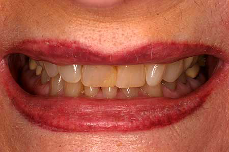 Smile with varying colored dental crowns