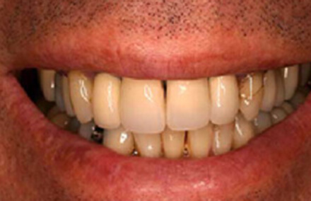 Discolored smile with damaged right tooth