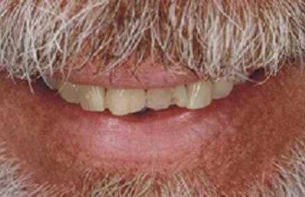Man with damage to front right tooth