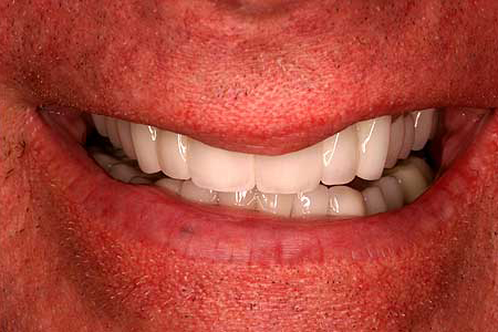 Brilliant white smile with zirconia crowns and bridges