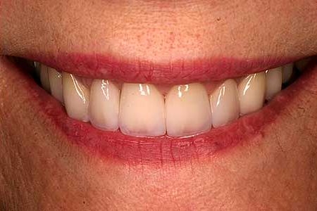 Flawlessly enhanced smile with zirconia crowns