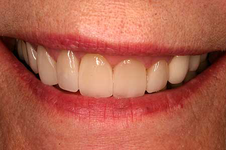 Woman's smile with unnatural looking cosmetic dentistry