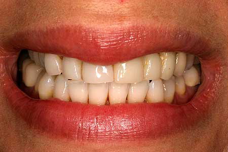 Yellowed smile with dark staining between teeth