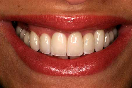 Woman with flawless smile using zirconia restoration