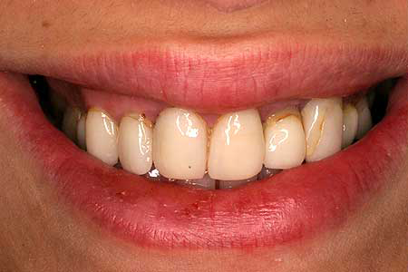 Woman with dark stains on upper right teeth