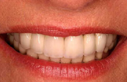 Natural looking white toothed upper denture
