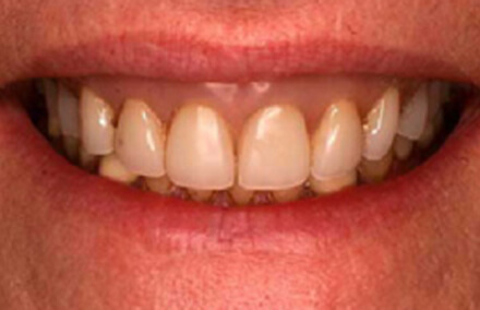 Yellowed teeth and unnatural looking denture base