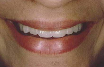 Woman with white properly aligned teeth