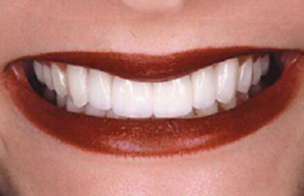 Woman's smile with even spacing between teeth