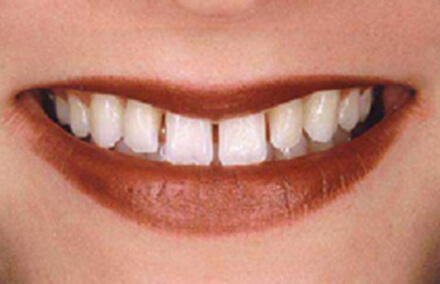 Woman's smile with large gaps between teeth