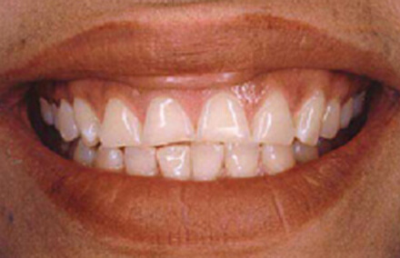 Woman with front teeth that do not touch