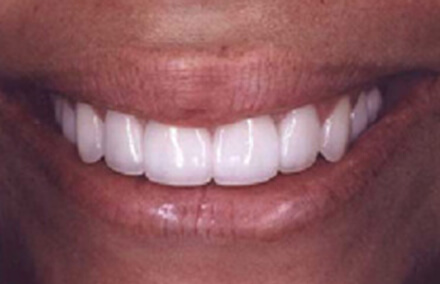 Woman after twelve tooth makeover with Empress restorations
