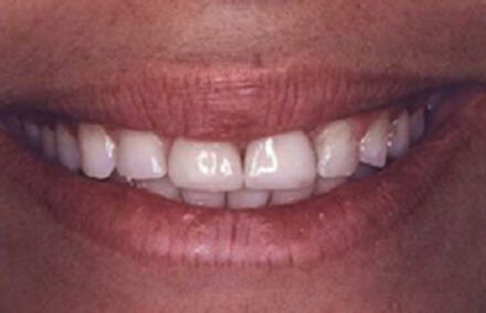 Woman with stubby misshapen teeth