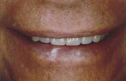 Man's smile transformed with six porcelain veneers