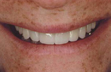 Woman with rebuilt teeth smiling