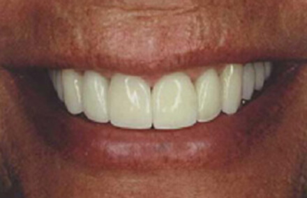 Woman after porcelain crown and veneer makeover