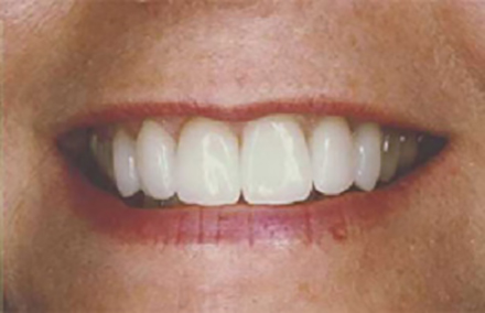 Woman's smile repaired with porcelain crowns