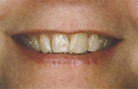 Woman's smile with discolored and worn teeth