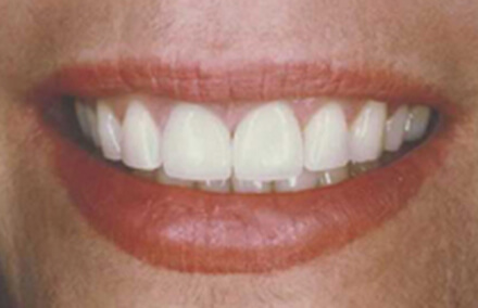 Woman with corrected teeth veneer makeover