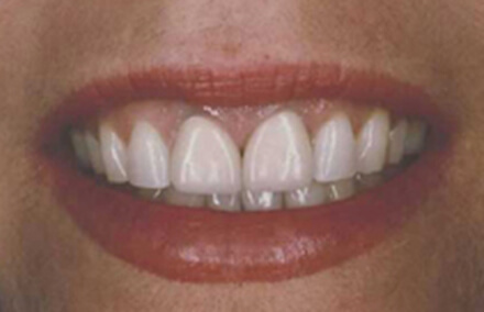 Woman's front teeth sticking out
