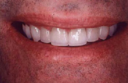Man's smile with twelve tooth makeover