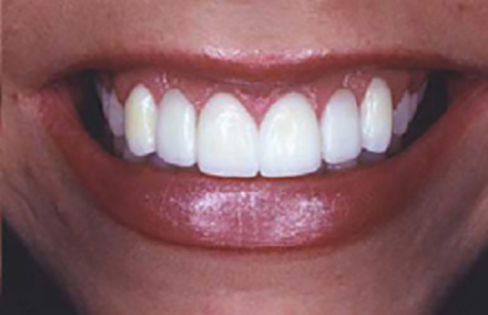 Woman's smile corrected with Empress bridges