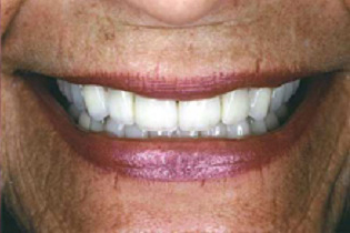 Older woman with all 28 teeth repaired