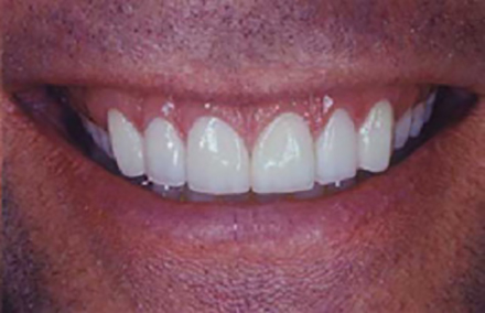 Fully transformed smile with six porcelain veneers