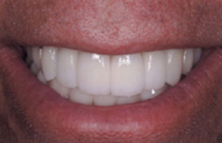 Smile with restored enamel and reshaped teeth