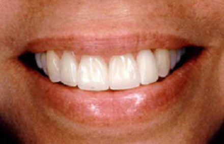 Woman's flawless smile with Empress 2 veneer-crowns